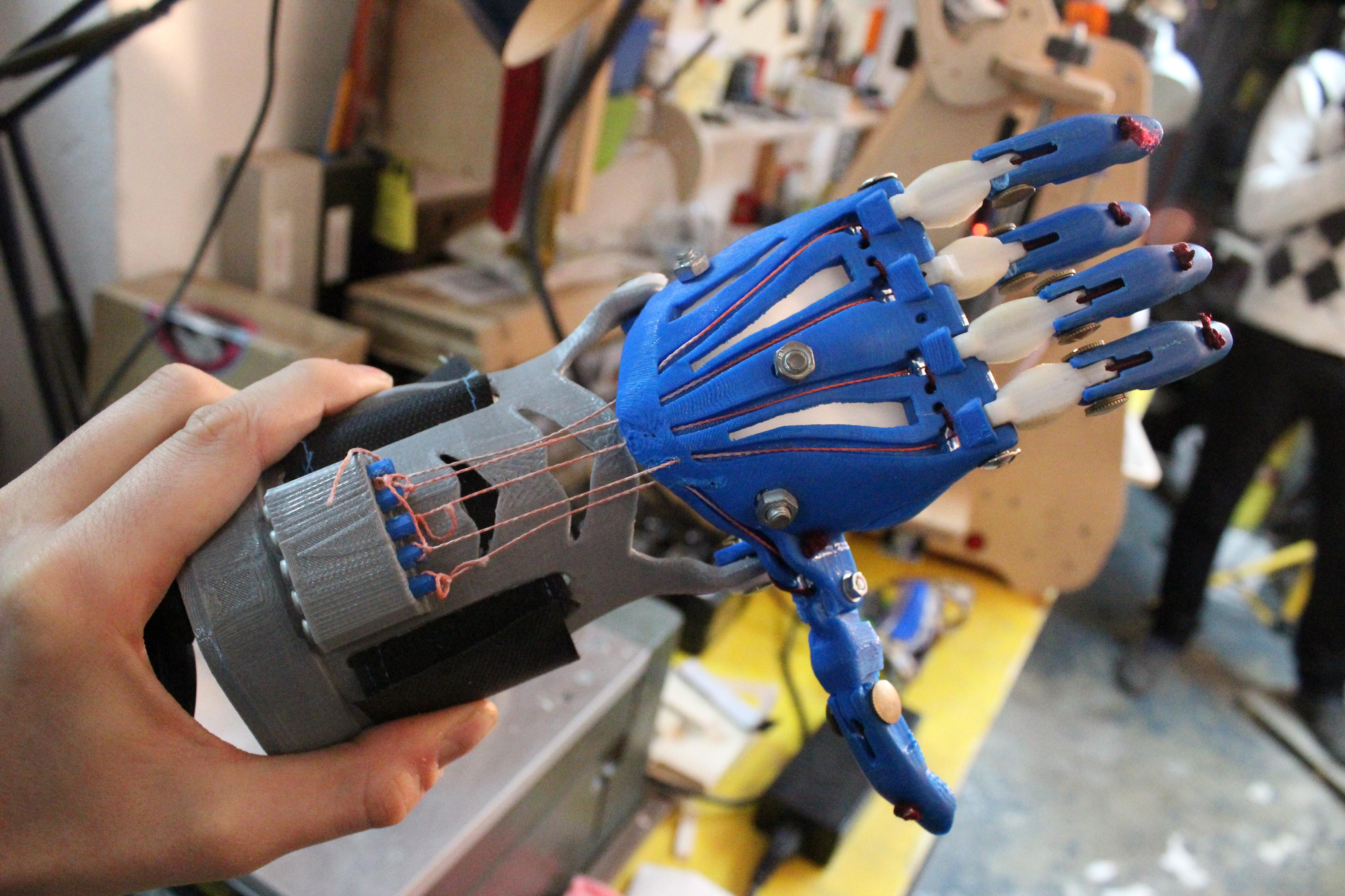 La protesi per la mano di un bambino creata con la stampante 3d